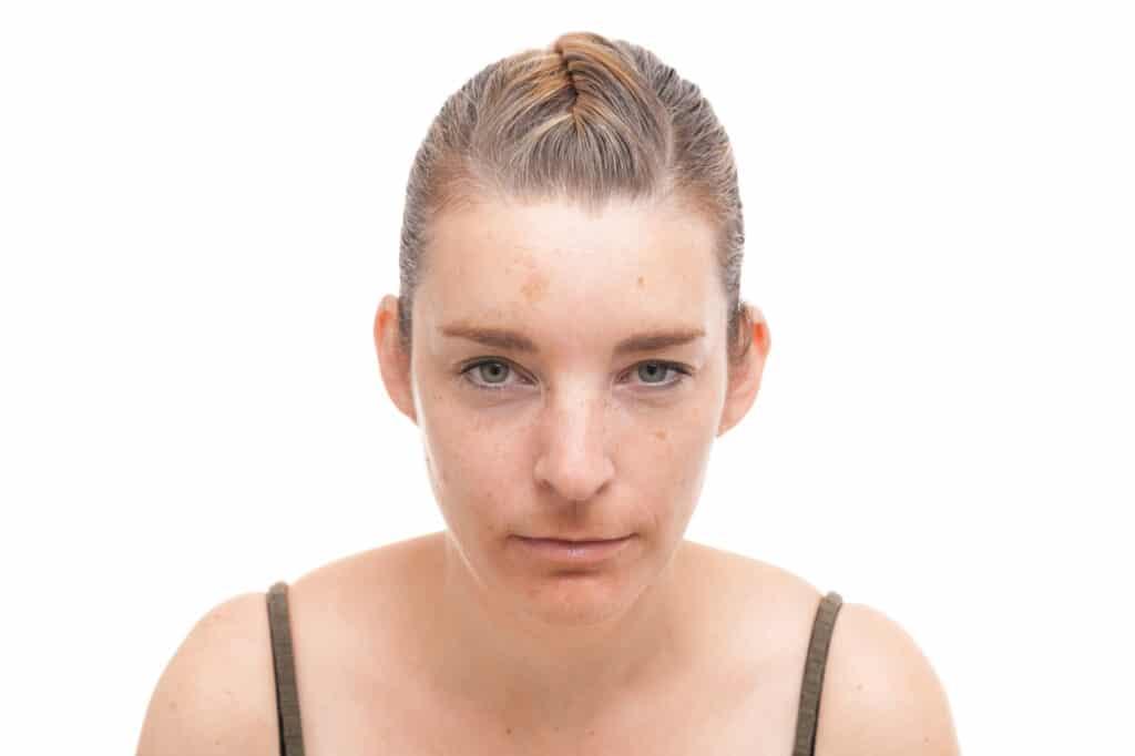 Fronsrimpels na de behandeling met Botox