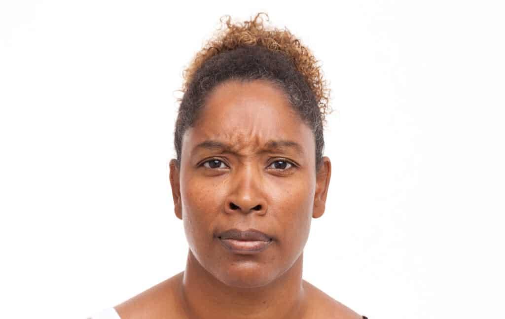 Fronsspier behandeld met Botox tegen migraineklachten