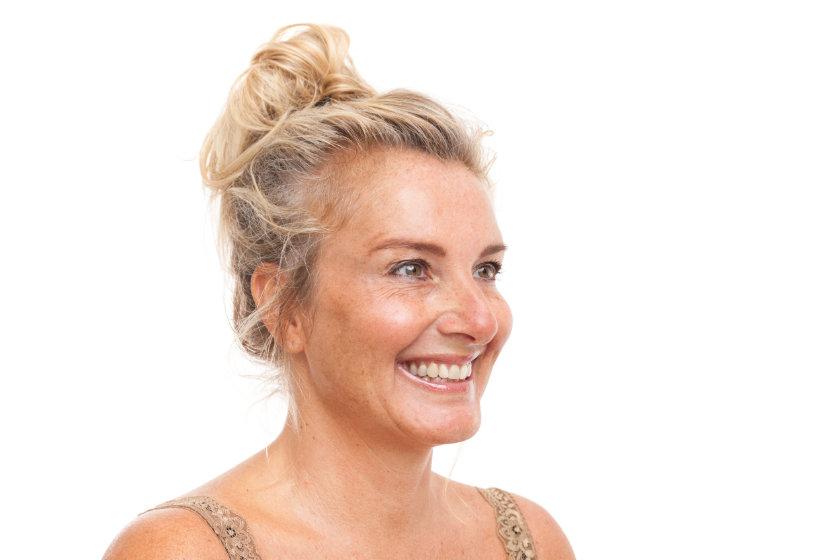 Kraaienpootjes behandelen met Botox