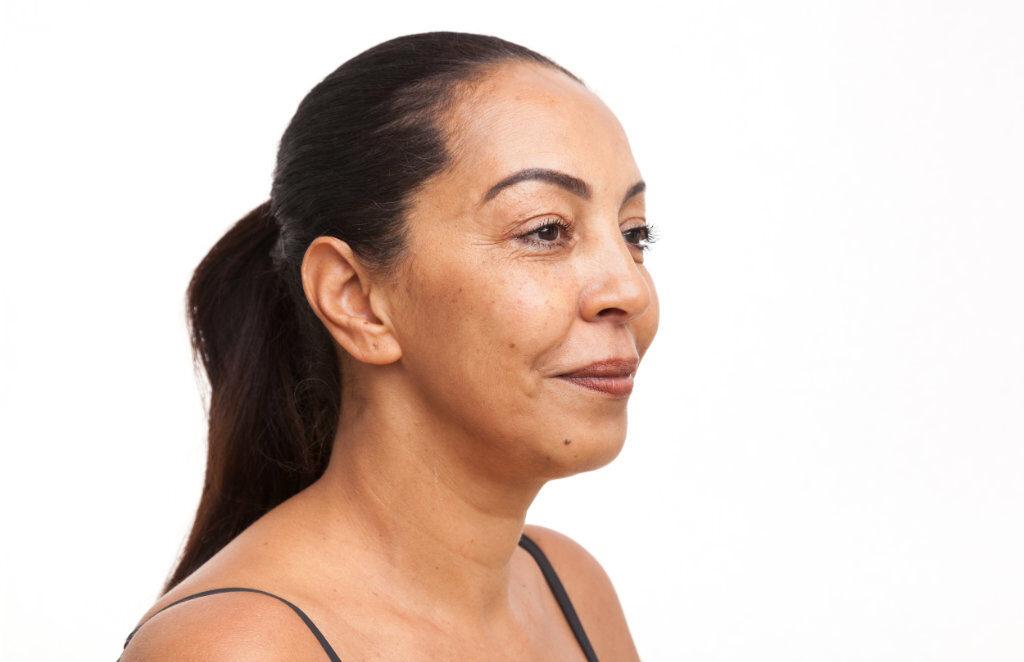 Kincorrectie met hyaluronzuur na de behandeling