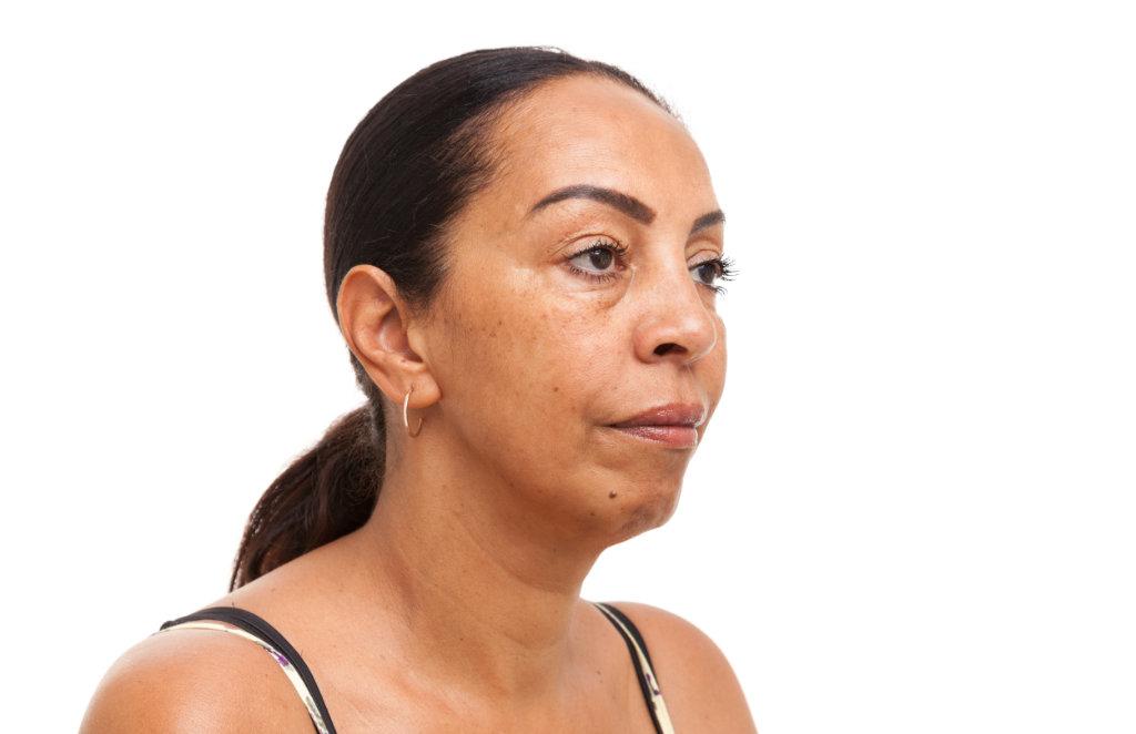 Kincorrectie met hyaluronzuur vóór de behandeling